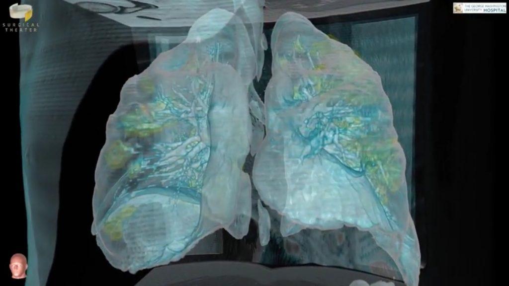 VIDEO: Cum arată plămânii unui pacient bolnav de COVID-19. Imagini 3D cu leziunile produse de coronavirus